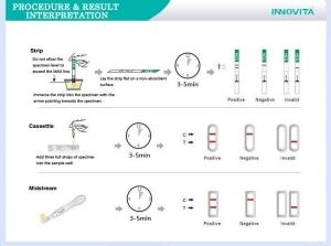 Prmjer 3 vrste urinarnog testa na trudnoću