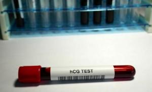 Krvni test na trudnoću