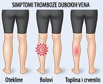 Simptomi tromboze dubokih vena