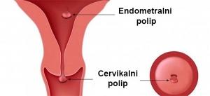 Polip na maternici: endometralni i cervikalni
