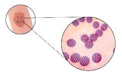 HPV uvećano