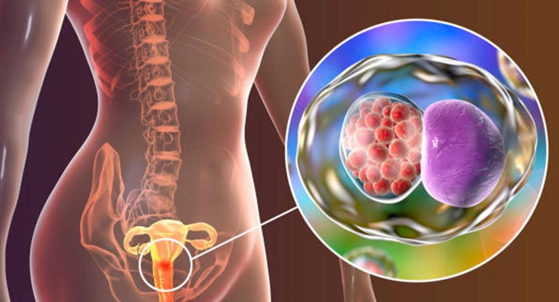 Klamidija – simptomi, dijagnoza i liječenje