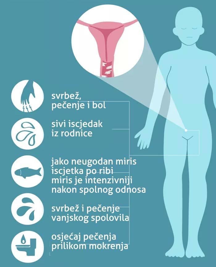 Simptomi bakterijske vaginoze
